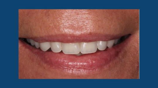 Image of patient with tooth loss after dentures.