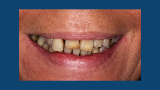 Image of patient with tooth loss before dentures.
